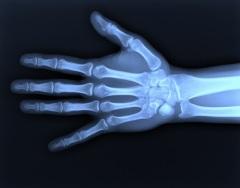 rentgenovskie-luchi